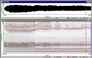 Anàlisi acústic veu trastorns veu