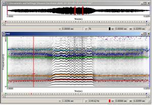 Anàlisi acústic trastorns veu